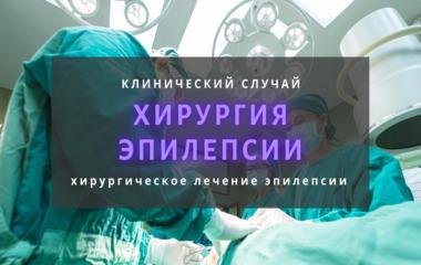 хирургия эпилепсии